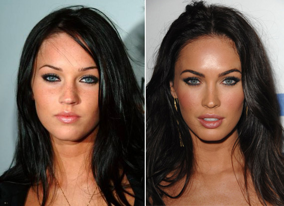 Megan-Fox-before-and-after